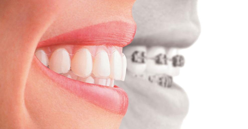 extrêmement unique achat original convient aux hommes/femmes Orleans Orthodontics. Braces & Invisalign